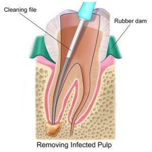 root_canal Cosmetic Dentist in Oklahoma City