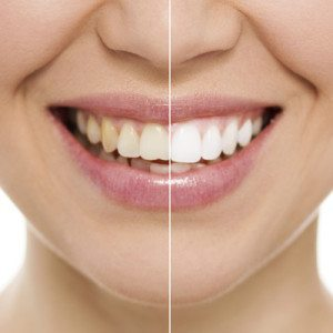 whitening Cosmetic Dentist in Oklahoma City